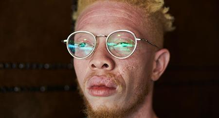 Ritratto di un uomo albino con gli occhiali